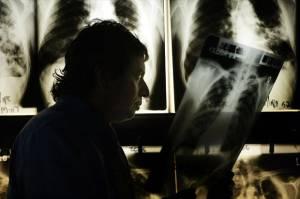 Waspadai TB di Tengah Pandemi, Ini Bedanya dengan Covid-19
