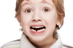 COVID-19 Bisa Sebabkan Gigi Penderita Tanggal