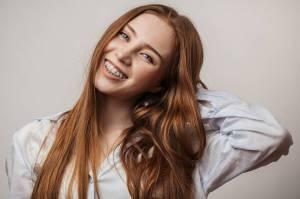 Mengapa Pengguna Behel Harus Jaga Kebersihan Gigi dan Mulut? Ini Alasannya!