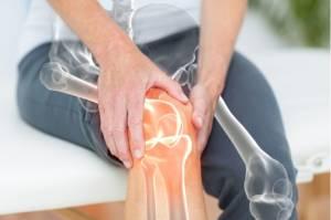 Usia 30 Tahun Rawan Osteoporosis, Begini Cara Mencegahnya!