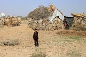 Wabah Gizi Buruk Ancam Anak-anak Yaman