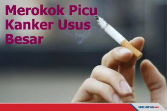 STOP! Kebiasaan Merokok Bisa Memicu Kanker Usus Besar
