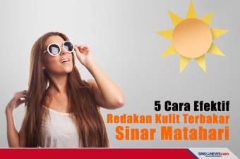5 Cara Efektif Meredakan Kulit yang Terbakar Sinar Matahari