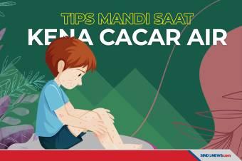 Penderita Cacar Air Justru Disarankan Dokter untuk Mandi