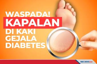 Salah satu Gejala Diabetes Tipe 2 Adalah Kapalan di Kaki