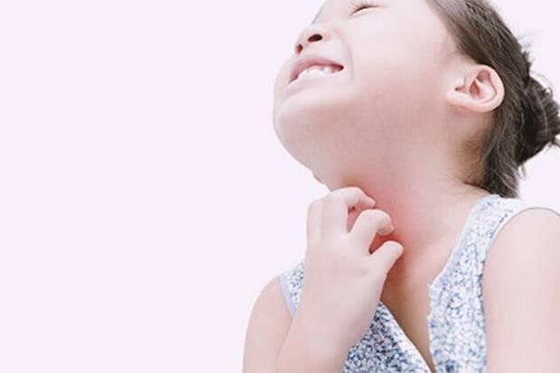 Awas, Jerawat Genital juga Serang Anak