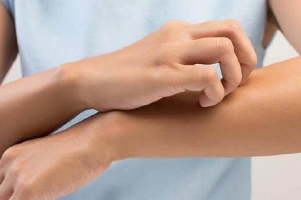 Mengenal Jerawat Genital yang Bisa Ganggu Kenyamanan