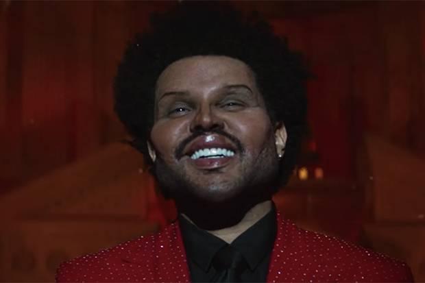 Ada yang Berubah pada Wajah, The Weeknd Diduga Operasi Plastik