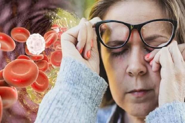 Kolesterol Tinggi, 3 Gejala Ini Ditemukan pada Mata