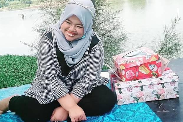 Didesak Netizen Pasang Behel, Kekeyi Menolak: Gigiku Langka