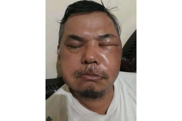 Suntik Vaksin Corona Vac, Wajah Pria di Pondok Aren Bengkak dan Mengeluarkan Cairan