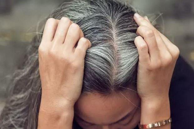 Studi: Beruban karena Stres, Rambut Akan Kembali Gelap Secara Alami