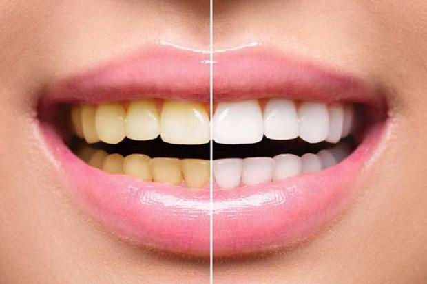 Cara Memutihkan Gigi, Pakai Kulit Pisang hingga Stroberi