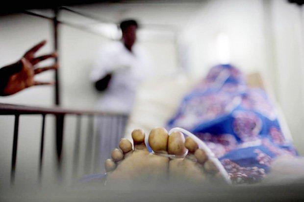 Ini Tiga Penyebab Utama Kematian pada Ibu Hamil