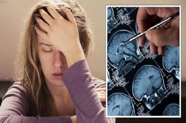 Migrain, 7 Tanda Sakit Kepala yang Mengancam Jiwa