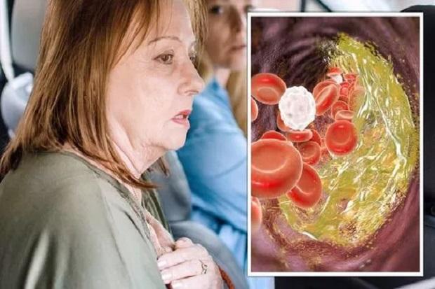 3 Gejala Awal Kolesterol Tinggi yang Perlu Diketahui