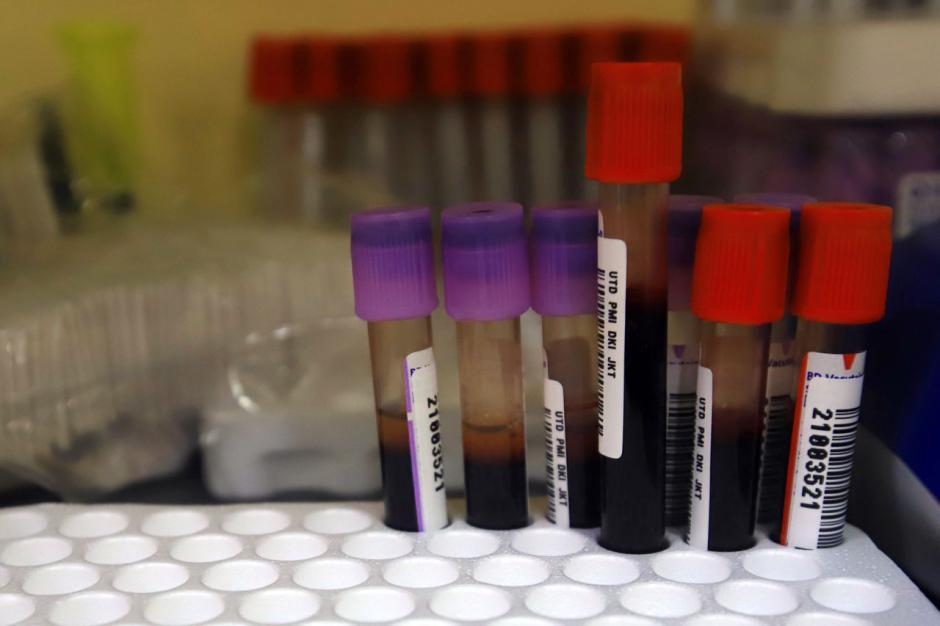 Donor Darah Plasma Konvalesen Penyintas Covid-19 di PMI DKI Jakarta-3