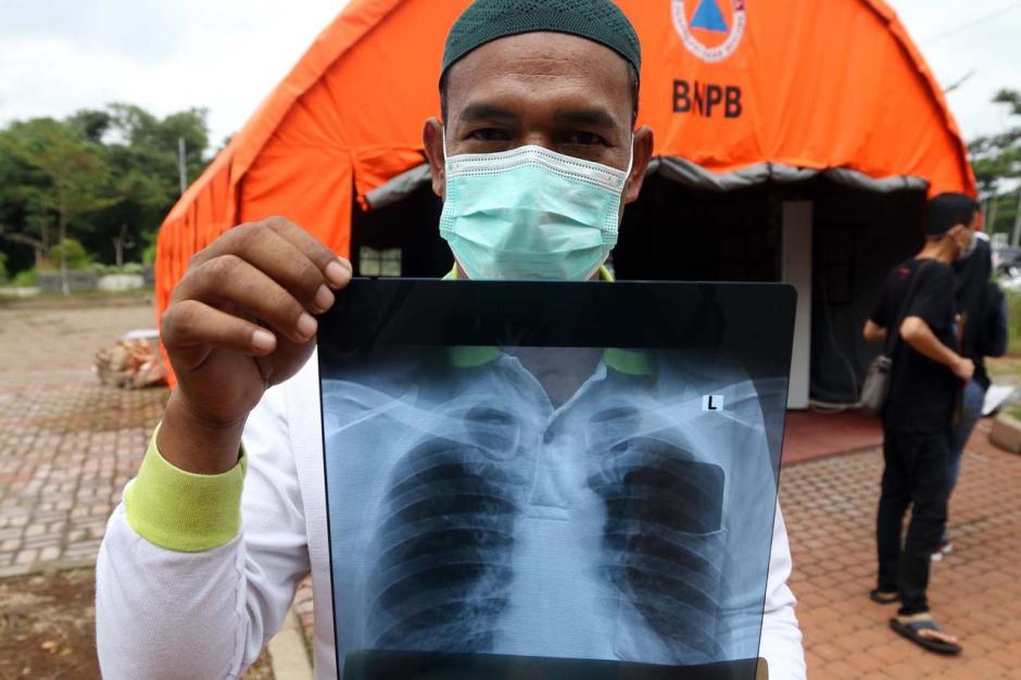 365 Hari Lawan Covid-19 : Masuknya Virus Mematikan ke Indonesia-12