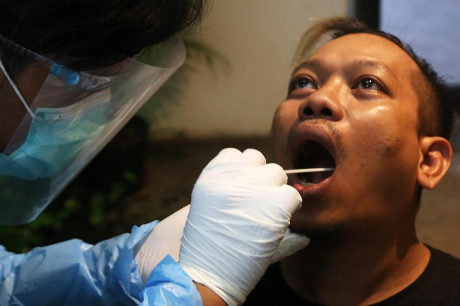 Masuk Kafe di Surabaya, Pengunjung Wajib Jalani Tes Rapid Antigen Bioscience-1
